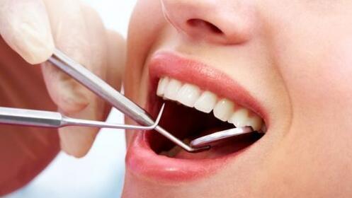 Limpieza dental por 10,90 €