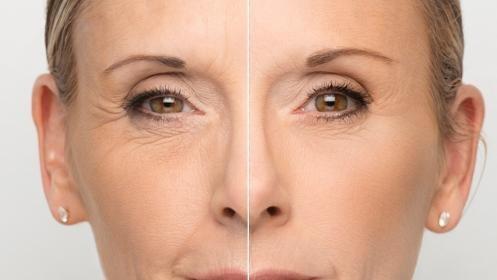 Facial: Hidratación+ ácido Hialurónico + vitamina C por 18 €